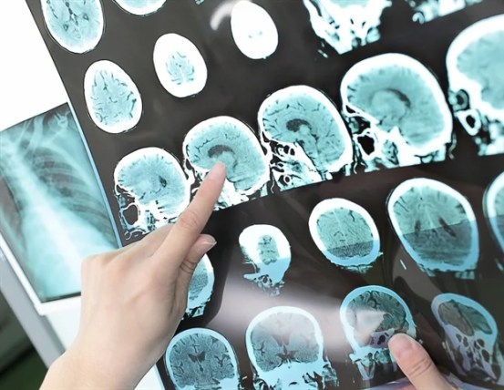 The risk of stroke remains significant for up to five years after a traumatic brain injury, the study reveals