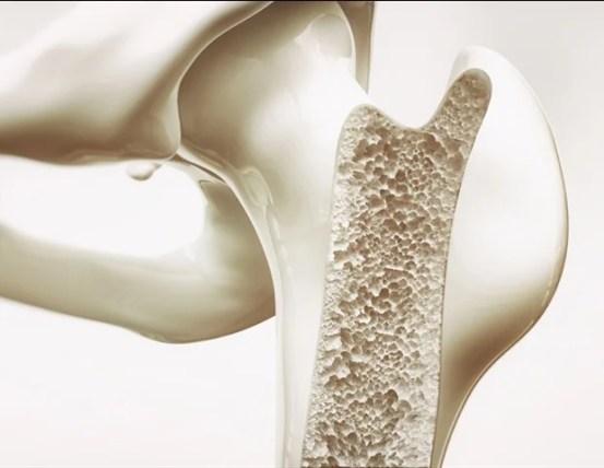 Medical professionals use octacalcium phosphate to improve bone repair