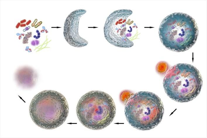 Çalışma: SARS-CoV-2 proteinleri tarafından otofajinin manipülasyonu.  İmaj Kredisi: Kateryna Kon / Shutterstock