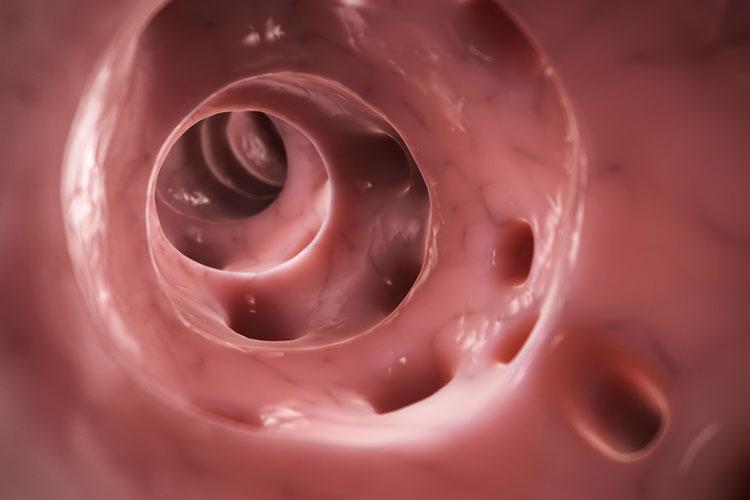 Image result for diverticulitis