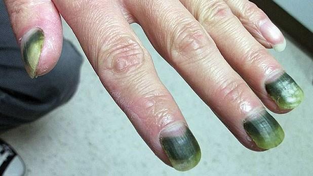 green nail syndrome