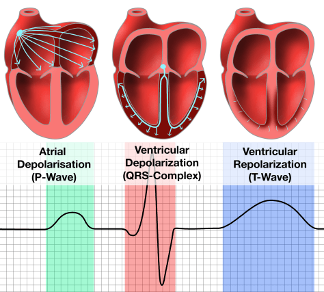 Three hearts showing a P-Wave, QRS-Complex, and a T-Wave