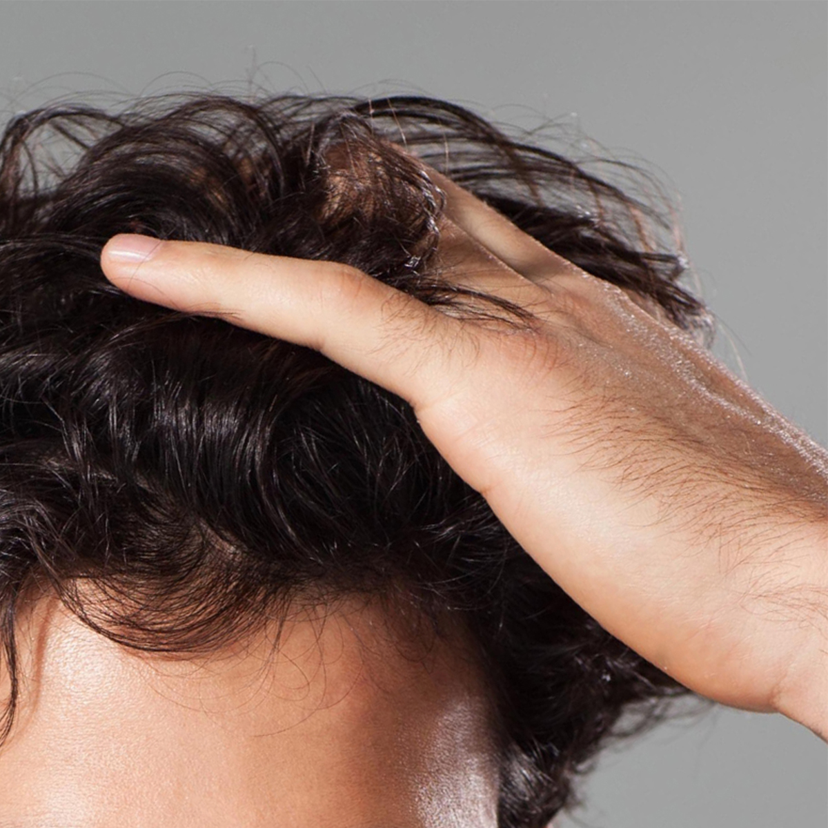 How to Alleviate your Dandruff Problem