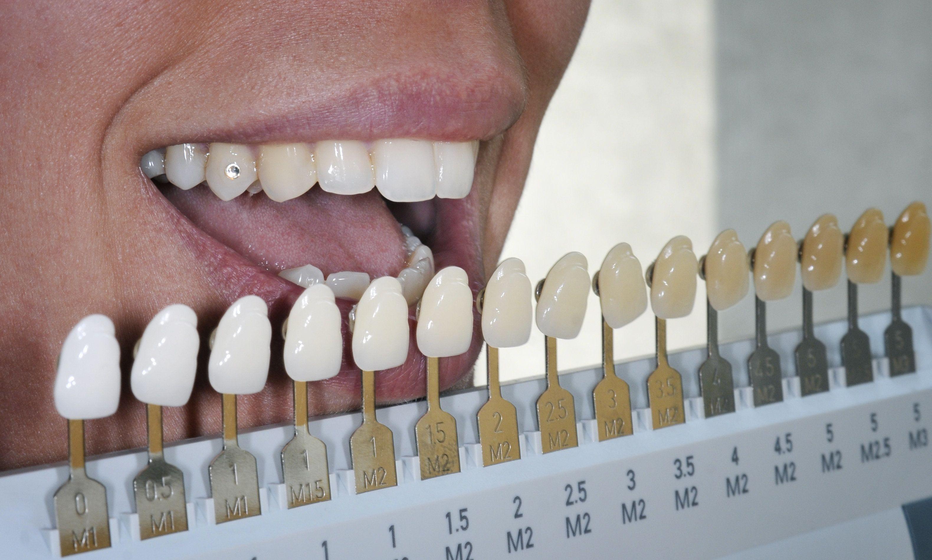 Virginia Beach Va Tooth Discoloration Types