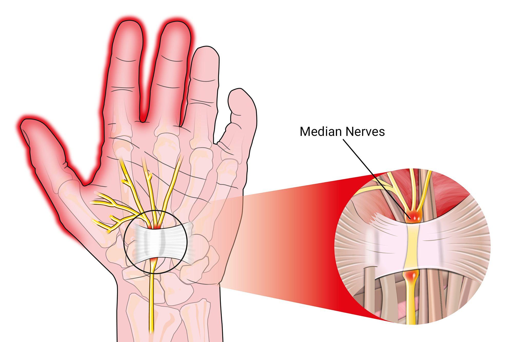 Arthritis Pinky Finger