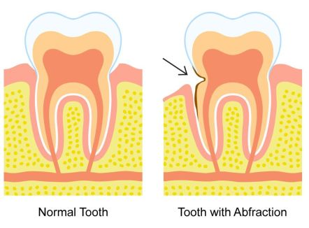Illustration of a normal tooth vs. one with an abfraction
