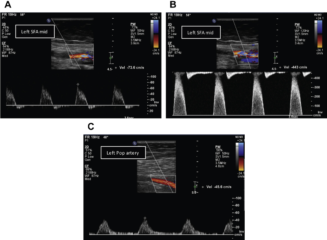 Figure 2 From Noninvasive Testing In Peripheral Arterial