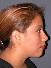 Tip rhinoplasty recovery