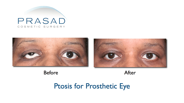 Ptosis Surgery Drooping Eyelids Before And After