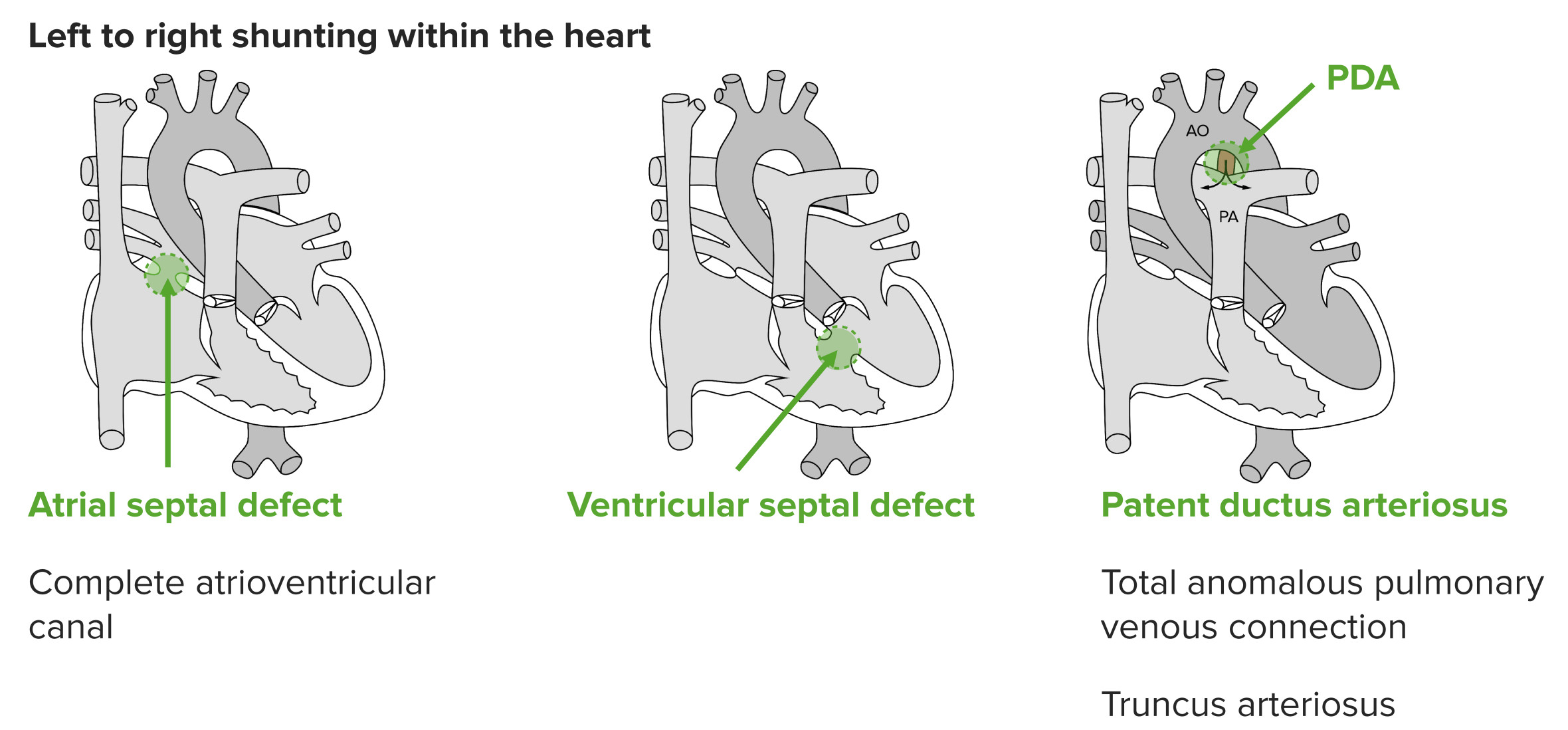 Bicuspid Aortic Valve Disease
