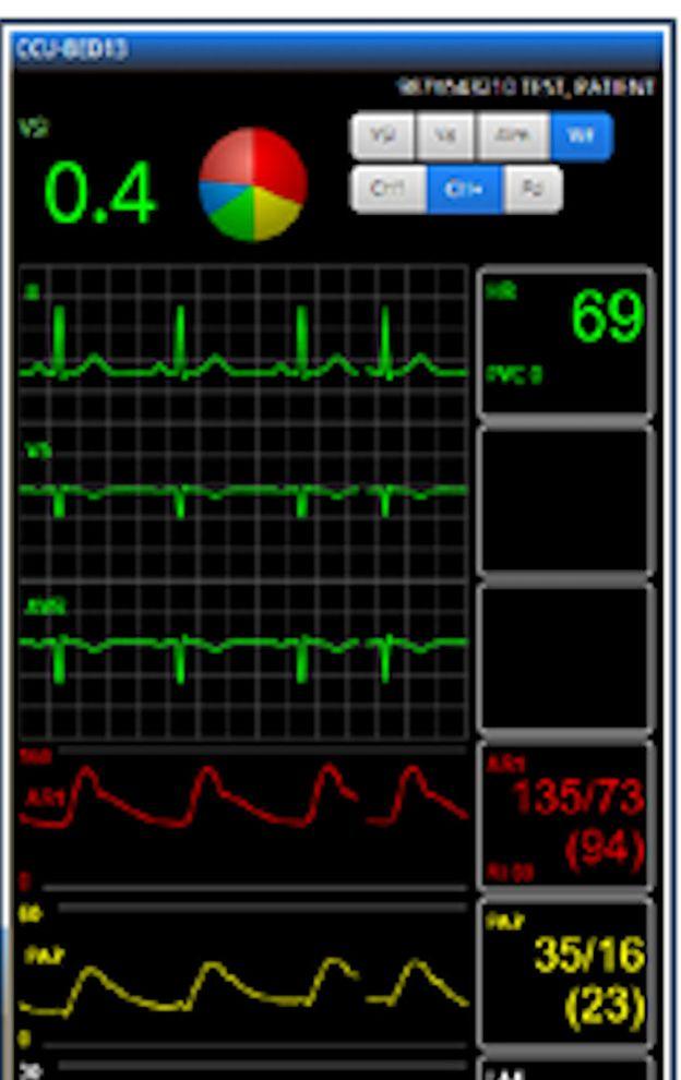 El personal de salud puede ver todos los signos vitales del paciente a través de una app que puede mirar en su teléfono o computadora, en cualquier parte. EXCELMEDICAL