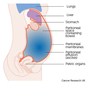 About fluid in the abdomen   Coping physically   Cancer