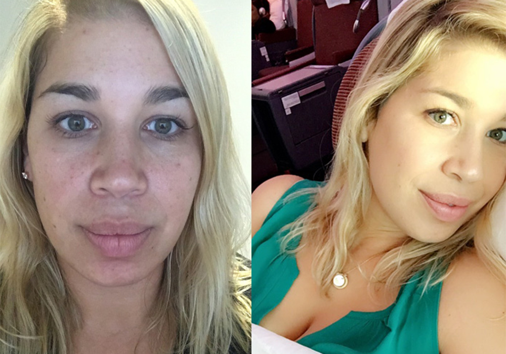 The Surprising Facial That Gave Me The Best Skin Of My