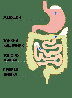 2RUS Причины и лечение газов у новорожденных, младенцев и детей.