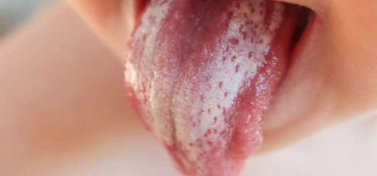 Молочница(кандидозный стоматит) во рту ребенка