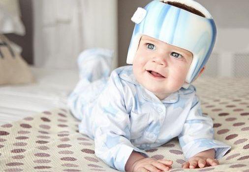 Плагиоцефалия или синдром плоской головы у детей.