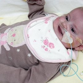 Синдром серого ребенка. Чем опасен Левомицетин при беременности.