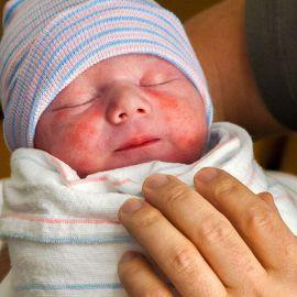 Родимые пятна у младенцев, причины появления и показания к удалению.