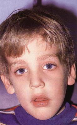 0-1 10 неприятных последствий, к которым может привести сон с открытым ртом у ребенка.