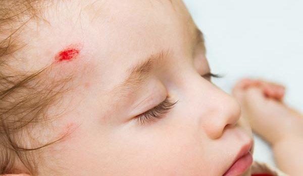 Падения ребенка, что делать когда маленький ребенок упал и ударился головой?