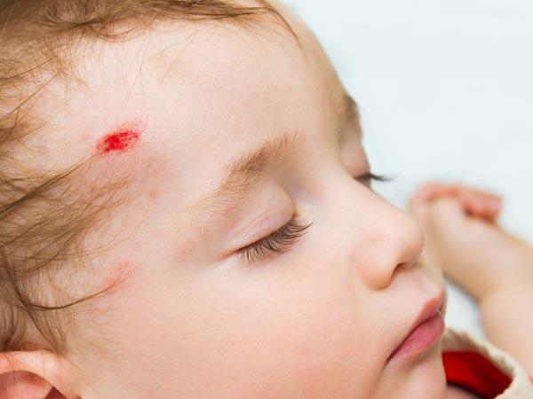 x04-1401872533-tod2.jpg.pagespeed.ic_.uEw-bzEBgZ Падения ребенка, что делать когда маленький ребенок упал и ударился головой?