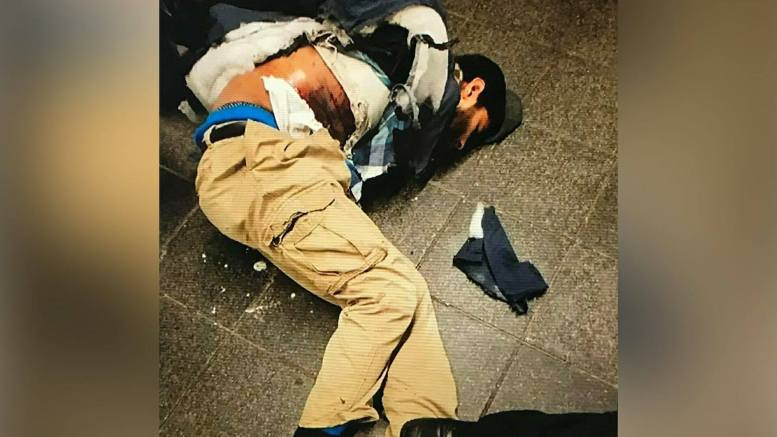 (Feature photo by Fox News Screen capture and Dagger News. NYC Explosion Port Authority.)