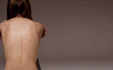 A girl with anorexia turned back, spine and ribs visible. (Shutterstock/VGstockstudio)