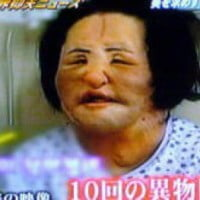 Hang Mioku Former Model Addicted To Plastic Surgery Left Disfigured After Cooking Oil
