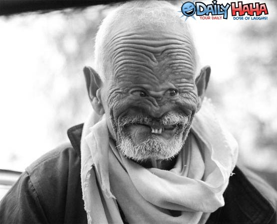 Wrinkley Big Forehead