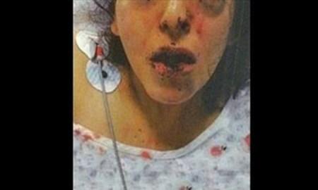 deaf-girl-beaten-4-30-17