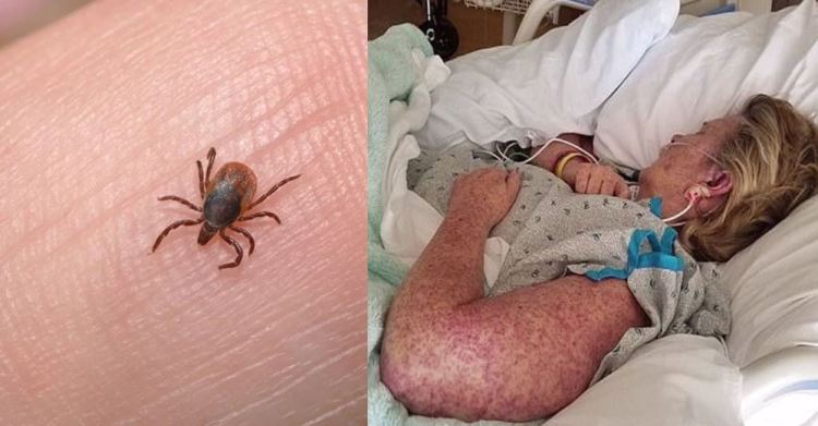 Mother Dead After Bite From Common Pest, Family Now Is Warning Others
