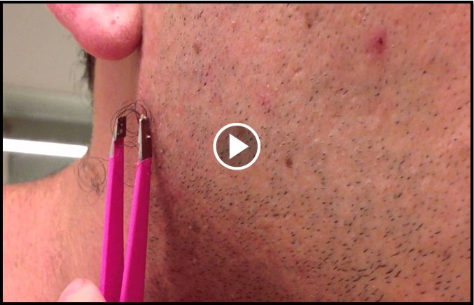 Man Shares With The World What Happens When You Extract A Massive Ingrown Hair [VIDEO]