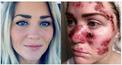 Woman Shares Dire Warning To All Women After Her Face Ends Up Looking Like This [PHOTO]