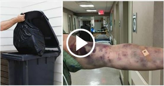 Man Seeks Medial Attention For Strange Bug Bites All Over His Arm [VIDEO]