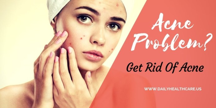 acne skin diseases solution, acne,acne skin,acne problem, acne problem solution, aloe vera