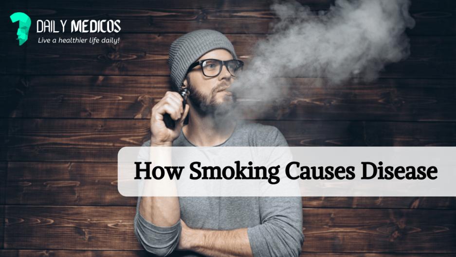 smoking kills daily medicos blog