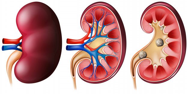 kidney image for dialysis study