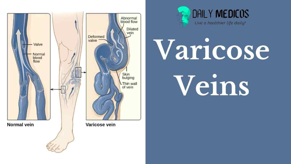 Image of Varicos Veins by daily medicos