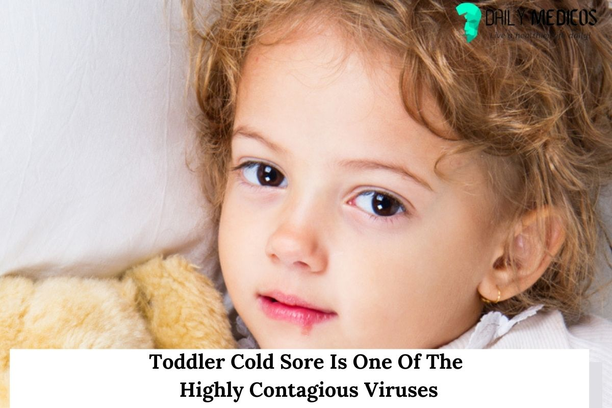 Toddler Cold Sore Is One Of The Highly Contagious Viruses 8 - Daily Medicos