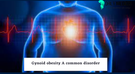 Gynoid vs Android Obesity: causes, health risks, and treatment. 21 - Daily Medicos