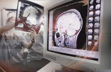 Scope Of Career In Endovascular Surgical Neuroradiology In Pakistan 3 - Daily Medicos