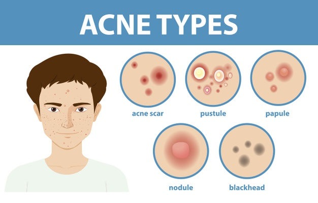 How to get rid of Pomade Acne [Detaied Guide] 4 - Daily Medicos