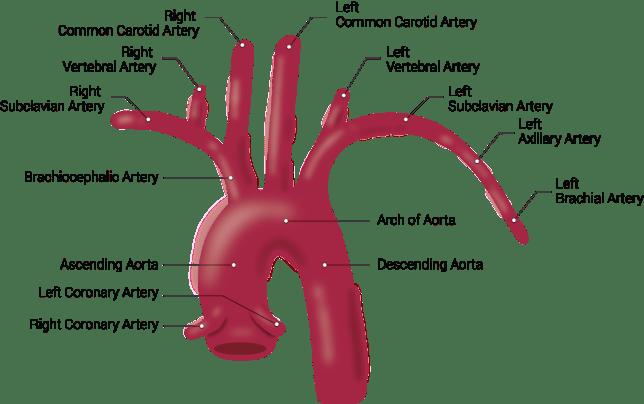 Innominate Artery- A Right Brachiocephalic Artery 3 - Daily Medicos