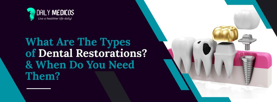 Which Type of Dental Restoration is Best For You? The Brief Overview About Restorative Dentistry Procedures 2 - Daily Medicos