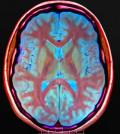 MRI by Nevit Dilmen / [CC-BY-SA-3.0 or GFDL]