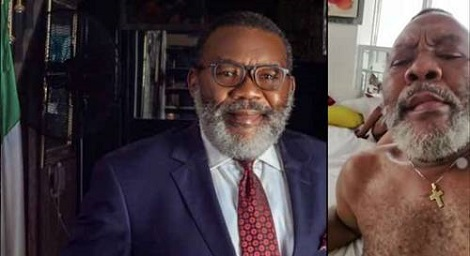 Buhari's appointee, Willy Amadi caught in s.e.x scandal tape
