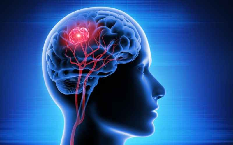 Brain Tumors May Be Put To Sleep By The Newly Identified Stem Cell Resting Phase