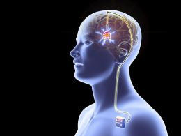 Parkinson's Patients Might Benefit From Deep Brain Stimulation Therapy