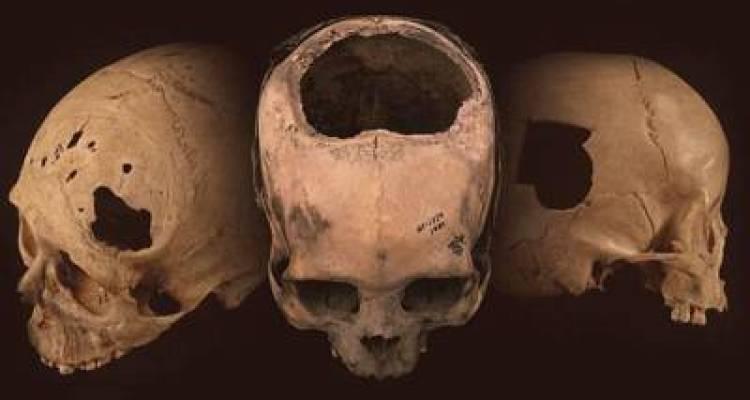 سائنسدانوں کو ہزاروں سال پرانی کئی سو کھوپڑیاں مل گئیں اور اُن تمام میں سوراخ موجود، یہ سوراخ کس لئے کئے گئے تھے؟ جان کر آپ بھی دنگ رہ جائیں گے کہ ایسا بھی ممکن ہے