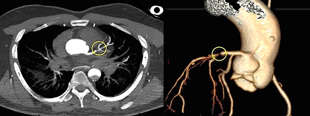 Visualisation d'une thrombose de la branche inter-ventriculaire de l'artère coronaire gauche.